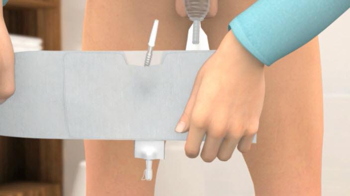 Gebruik van Conveen Active urine-opvangzak